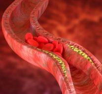 Cholesterol- jak można go obniżyć?